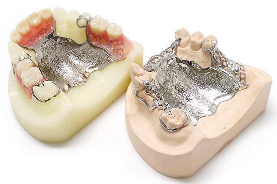 フルメタルタッチ金属床義歯